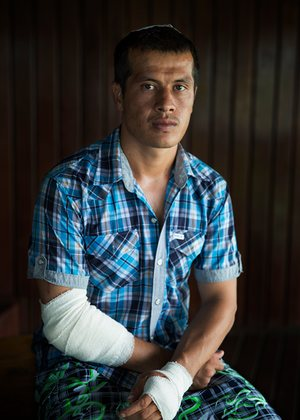 Kamran (not his real name), a refugee on Manus Island who was attacked
